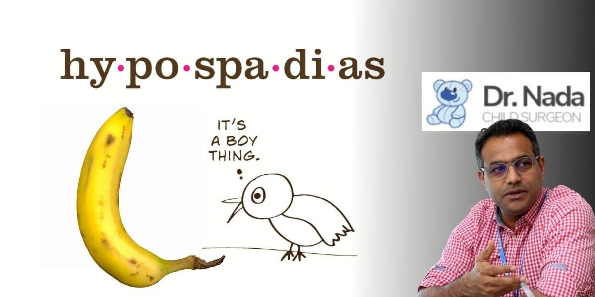 Hypospadias Treatment Malaysia